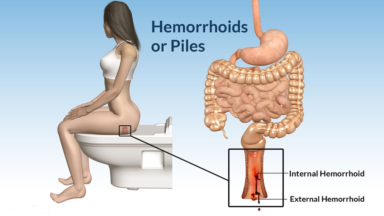 You Don't Have To Suffer: How You Can Manage Your Hemorrhoids